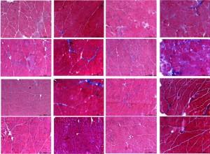 Distrofia-muscolare-dieta-aminoacidi-studio-centro-dino-ferrari